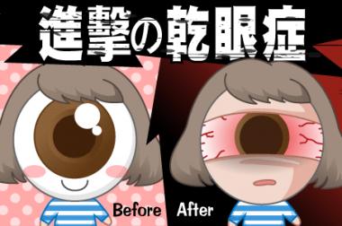 【睛知識】乾眼症的逆襲-新現代文明病!